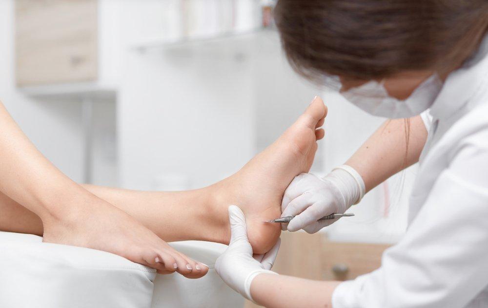 Photo of I migliori rimedi naturali per i calli e i duroni dei piedi: la guida facile