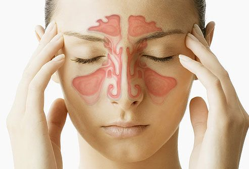 Photo of Guida alla sinusite: cause, sintomi e rimedi naturali nei casi non cronici