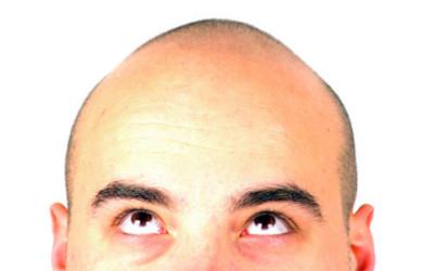 Alopecia: i rimedi naturali ed una corretta alimentazione
