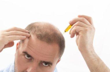 Scopriamo l'importanza di una corretta alimentazione per l'alopecia