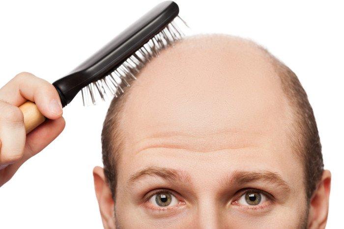 Alopecia  i rimedi naturali ed una corretta alimentazione - Tuttogreen fe684c411879