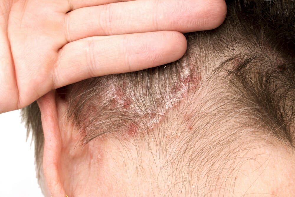 Photo of Lenire i disturbi della psoriasi in modo naturale: ecco i migliori sistemi
