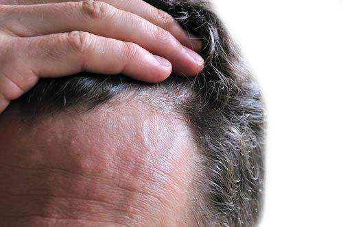 Photo of Dermatite seborroica: rimedi naturali e consigli utili
