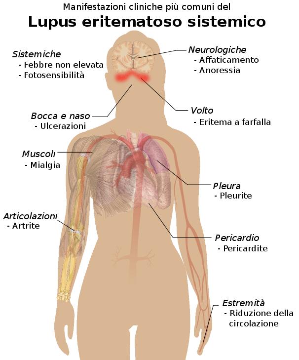 Photo of Lupus eritematoso sistemico: sintomi e come curarlo con metodi naturali