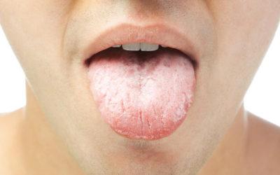 Lingua bianca cause e rimedi