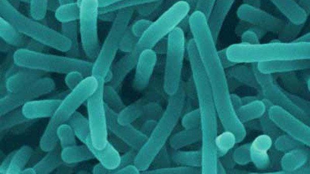 Photo of Listeria negli alimenti: un batterio che può uccidere