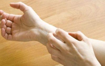 Fuoco di Sant'Antonio: sintomi e rimedi naturali per alleviarlo