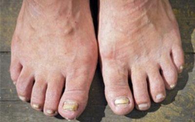 Micosi ai piedi: come prevenirla e rimedi naturali