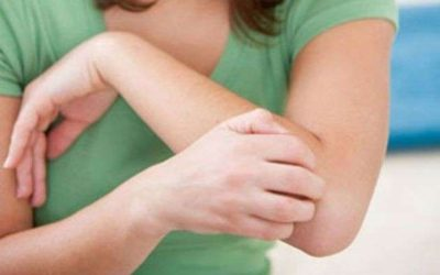 Dermatite da contatto: sintomi, cause e cure naturali