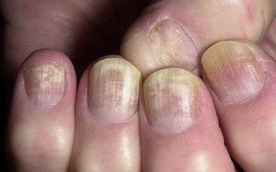 Risultati immagini per funghi mani e piedi