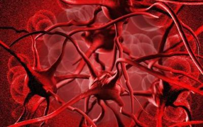 Anemia, come riconoscerla e curarla