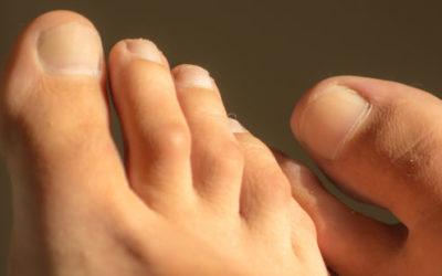 Giradito, sintomi e cure di questo disturbo