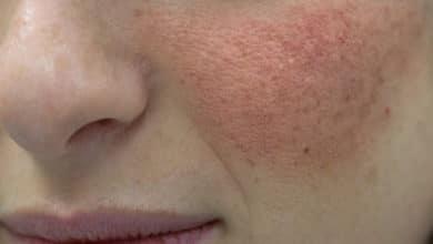 Photo of Esistono rimedi naturali per la dermatite seborroica? Quello che c'è da sapere