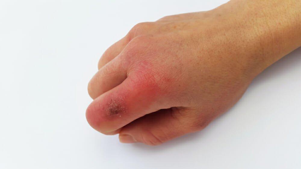 Photo of Come prevenire e curare i geloni alle mani e ai piedi in modo naturale