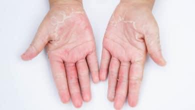 Photo of Dermatite da contatto: sintomi, cause e cure naturali