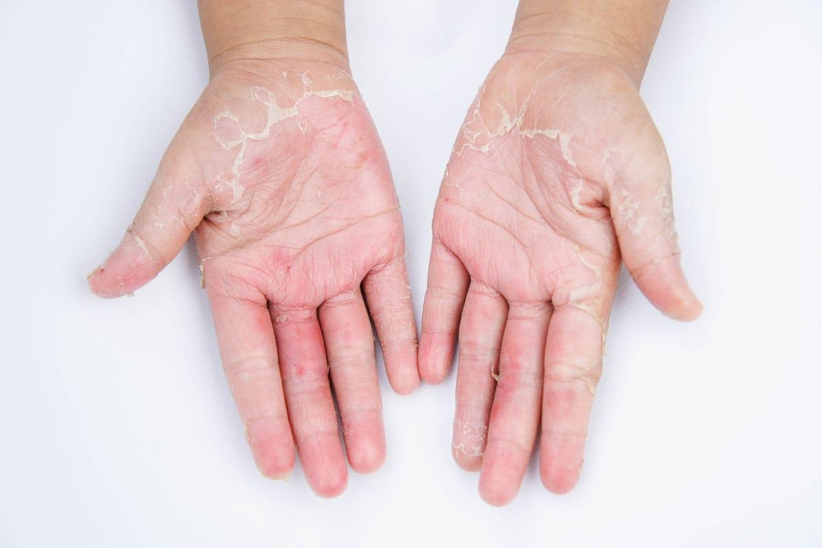 Candeggina Sulla Pelle Rimedi cura naturale] dermatite da contatto: sintomi, cause e cure