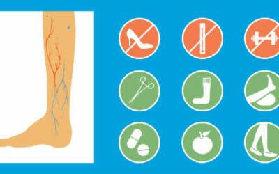 Flebite, conoscere questa infiammazione delle vene e curarla