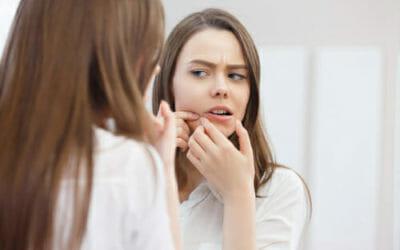 Acne giovanile rimedi naturali e prevenzione: 9 suggerimenti