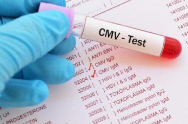 Citomegalovirus: pericoloso soprattutto per le donne in gravidanza, scopriamo i suoi sintomi e che terapie fare in caso di infezione