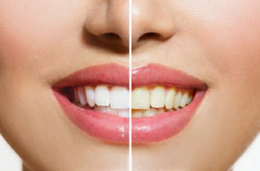 I segreti per sbiancare i denti con metodi naturali: quali sistemi (e alimenti) funzionano e quali no