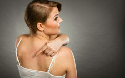 Orticaria: come curarla e prevenirla in modo naturale