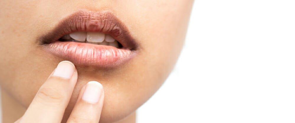 Photo of Cura e protezione al naturale delle labbra