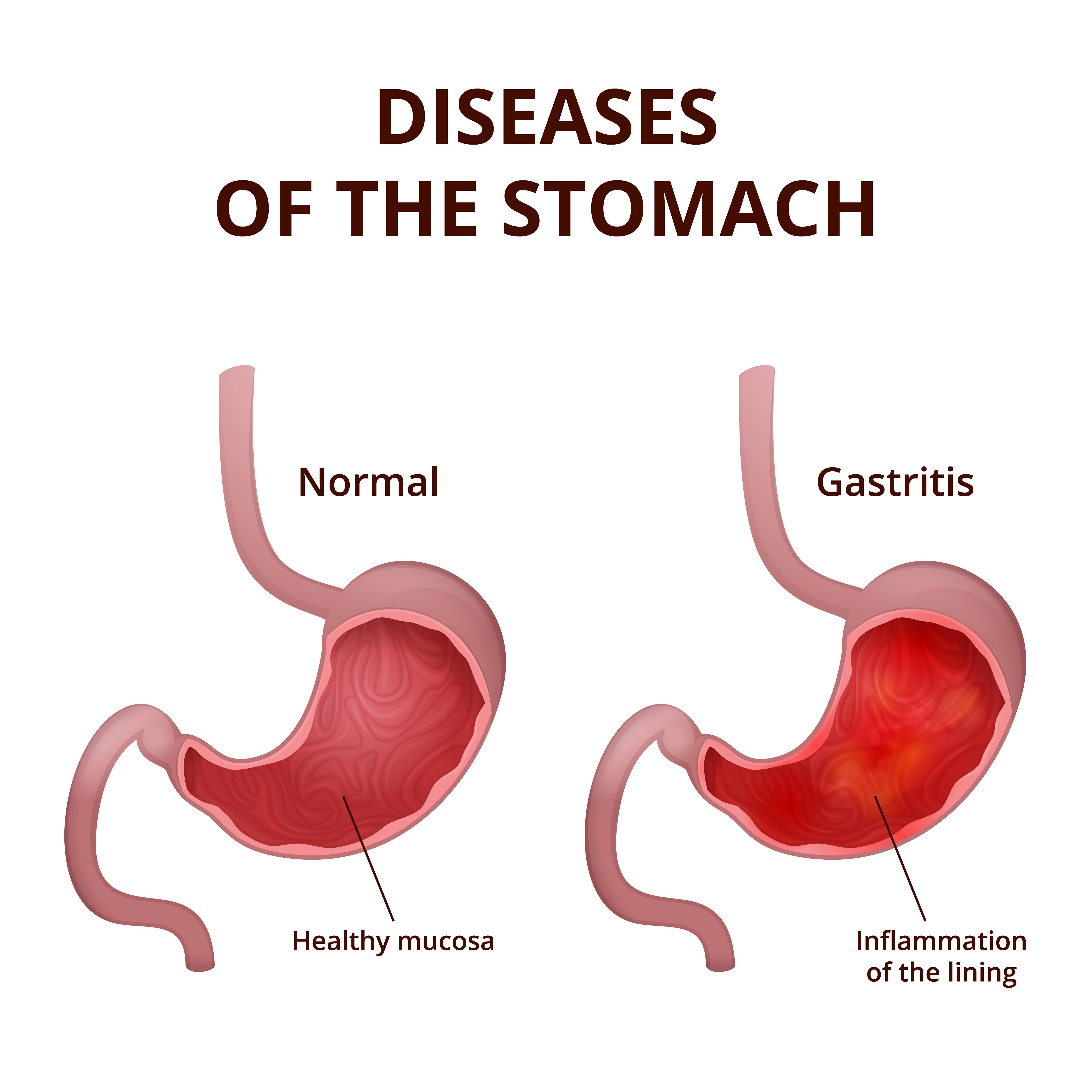 Photo of Diagnosi e rimedi per la gastrite nervosa, uno dei disturbi psicosomatici più frequenti