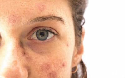 Tutto sulle macchie solari, come prevenirle e come curarle con i migliori rimedi naturali e dermatologici