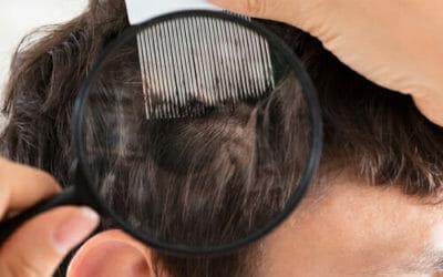 Lenire i disturbi della psoriasi in modo naturale: ecco i migliori sistemi
