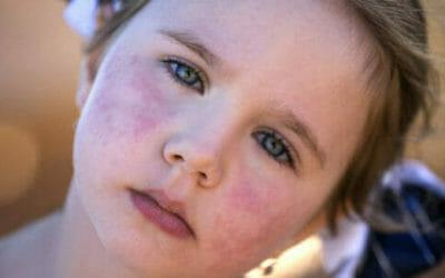 Macchie rosse sulla pelle, tutte le possibile cause