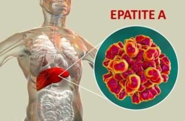 Tutto sull'epatite A: quali sono i sintomi, quali precauzioni prendere e i rimedi per guarire