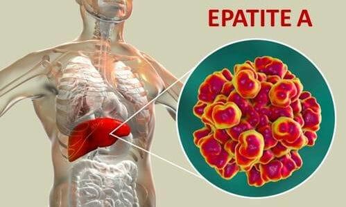 Photo of Tutto sull'epatite A: quali sono i sintomi, quali precauzioni prendere e i rimedi per guarire