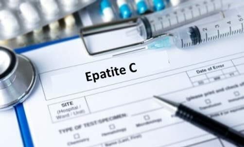 Photo of Tutto sull'epatite C: scopriamo il virus HCV che si trasmette con il sangue, è asintomatico e cronico