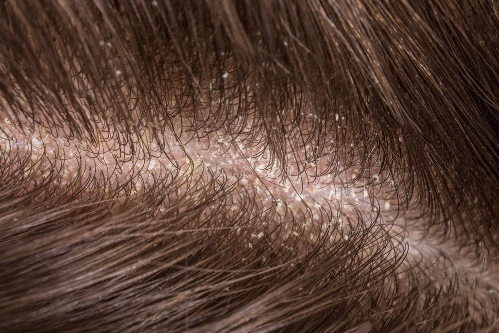 Photo of Cuoio capelluto: secco o grasso tutti i rimedi naturali per tenerlo pulito, sano e profumato