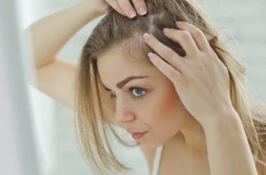 Cuoio capelluto: secco o grasso tutti i rimedi naturali per tenerlo pulito, sano e profumato