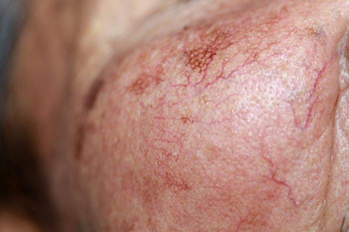 capillari rotti
