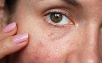Capillari rotti: come prevenire e curare la fragilità dei capillari