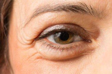 Come eliminare in modo naturale le odiate borse sotto gli occhi, perché si formano e a quale età