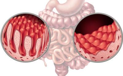 Come riconoscere e cosa fare in caso di malassorbimento intestinale, una situazione debilitante e assai diffusa