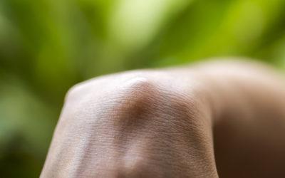 Come prevenire e lenire di effetti delle cisti sebacee: la guida pratica