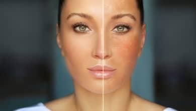 Photo of La melanina, il pigmento naturale che dona il colore alla pelle proteggendola dai raggi Uv