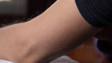 Photo of Cheratosi: un problema della pelle molto diffuso